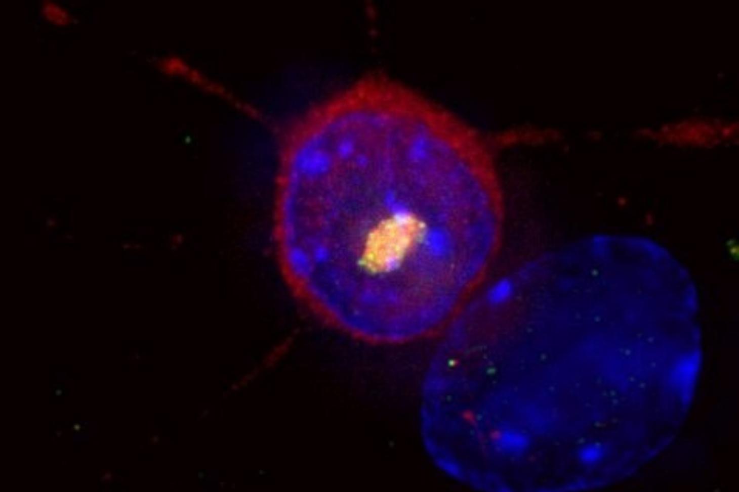 La maladie de Huntington est une pathologie neurodégénérative rare et héréditaire. Ici, un neurone du striatum exprimant la protéine huntingtine mutante (en rouge) à l'origine de la maladie de Huntington qui s'accumule dans le noyau (bleu) pour former un
